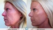 Nerium Results1