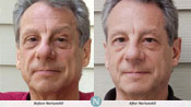 Nerium Results2